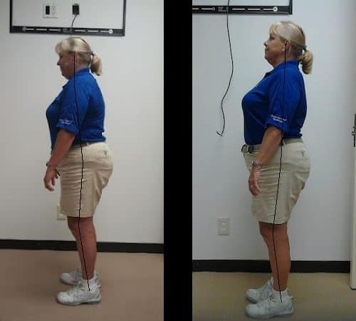 Back Pain and Poor Posture - Before and After