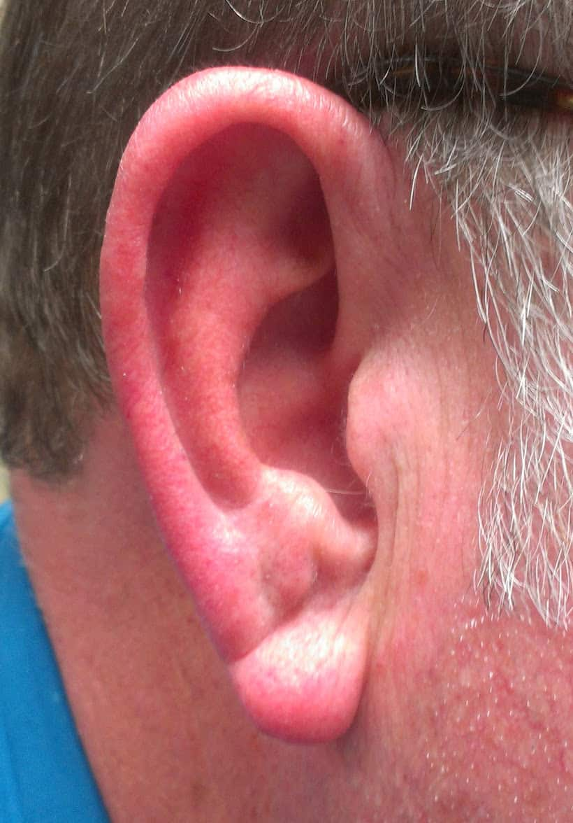 Ear Crease - Cardiovascular Disease