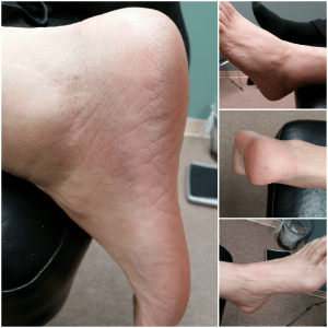 Ankle Injury After Quantum Neurology