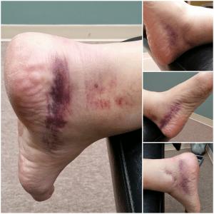 Ankle Injuy Before Quantum Neurology