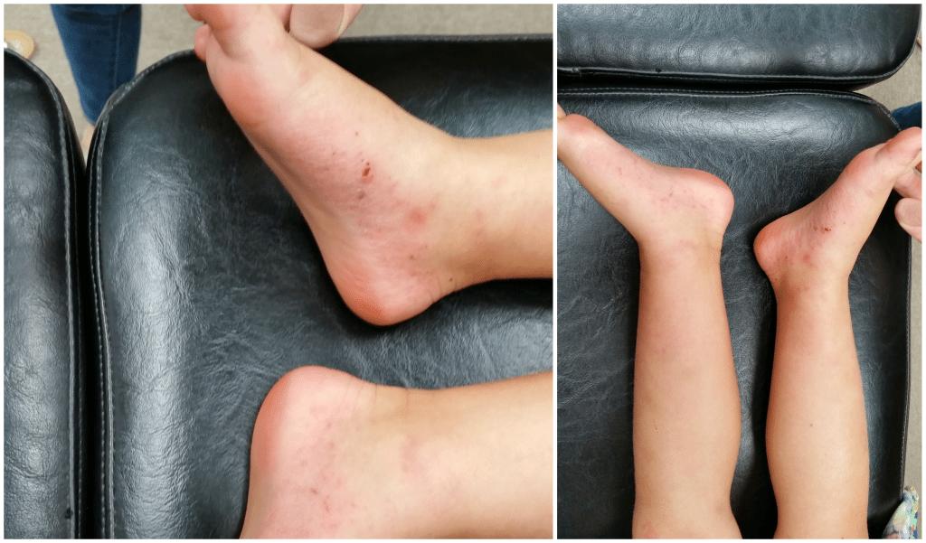 Skin Problem at The Hayden Institute