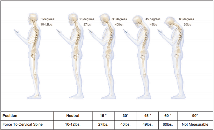 Text Neck - Force to Cervical Spine
