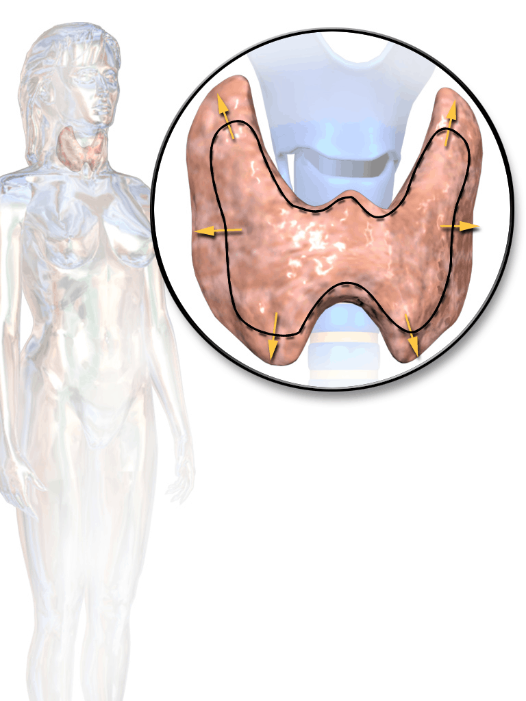 Thyroid Hormone Imbalance – Hypothyroidism and Hyperthyroidism Basics