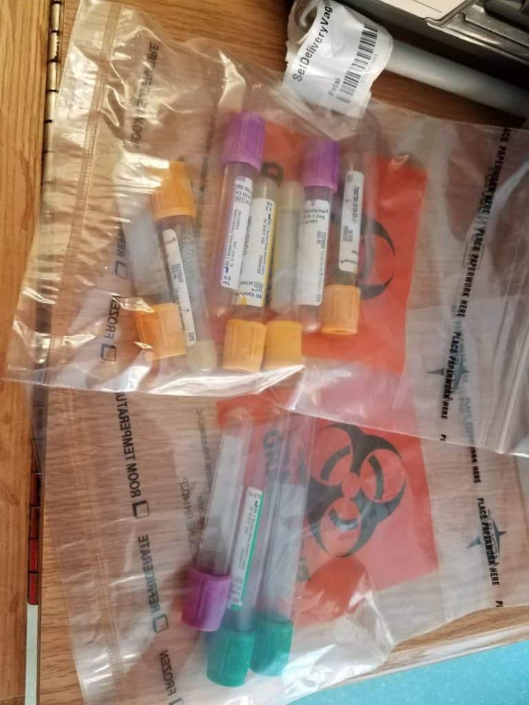 Kolt's Blood Tests